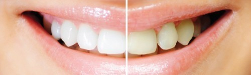 LED Tooth Whitening Products